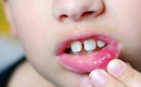Профилактика стоматита у детей — основные моменты
