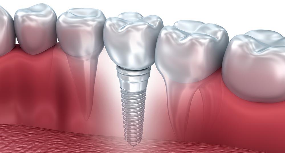 Как выполняется имплантация зубов