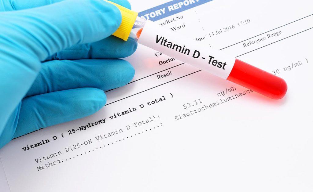 Анализ на витамин D